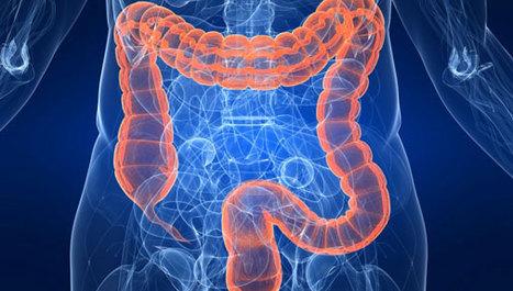 sto-je-karcinom-debelog-crijeva