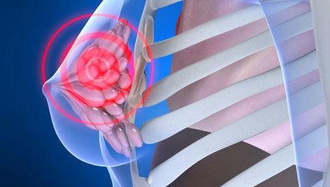Mastektomija