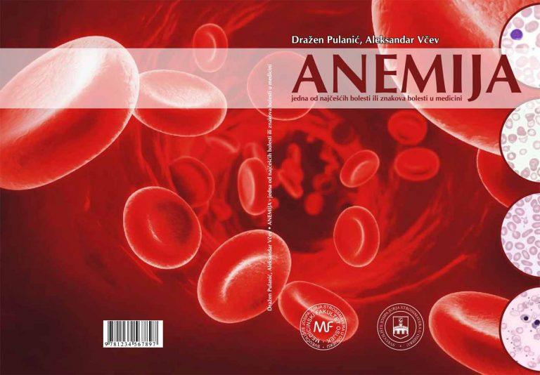 Knjiga: Anemija – jedna od najčešćih bolesti ili znakova bolesti u medicini
