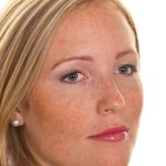 hiperpigmentacija-lica