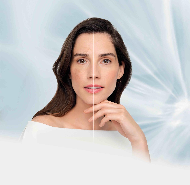 Muče vas pigmentacijske mrlje? Isprobajte Nivea Cellular LUMINOS 630® liniju!